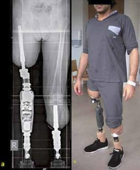 Implantation Of Endo Exo Prostheses In Cases Of Lower Limb Amputation An Alternative Treatment Option For Injured Soldiers Update And Case Report Military Medicine Worldwide