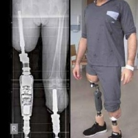 Implantation of endo-exo prostheses in cases of lower limb amputation – an alternative treatment option for injured soldiers?  – update and case report