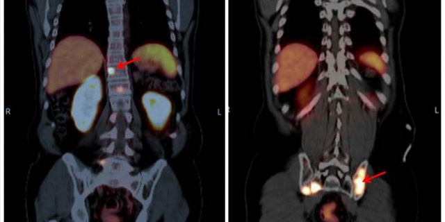 The Role of PSMA PET/CT and PET/MRI in Diagnosing Prostate Carcinoma
