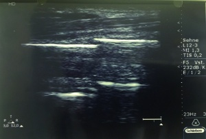 Figure 2. Ultrasound image of the right forearm demonstrating the fracture of the radial shaft