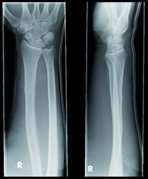 Figure 3. Radiograph of the right forearm in two planes confirming the fracture